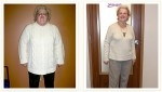 Ann - 110 lbs. Weight Loss