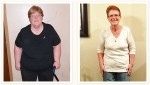 Beverly - 143 lbs. Weight Loss